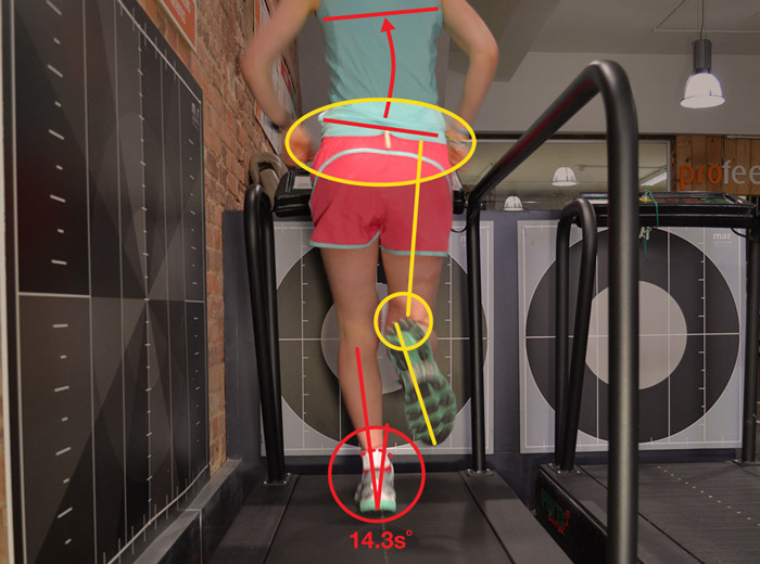video gait analysis treadmill