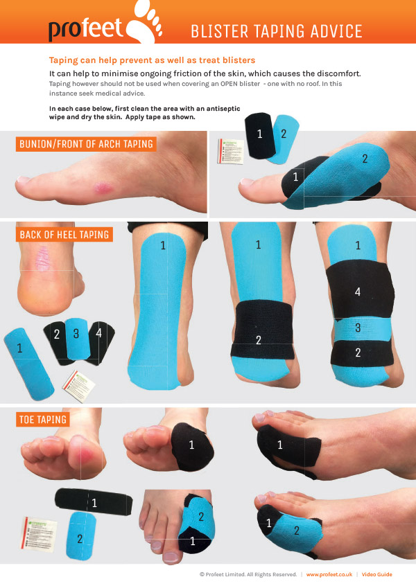 Blister Guide for runners